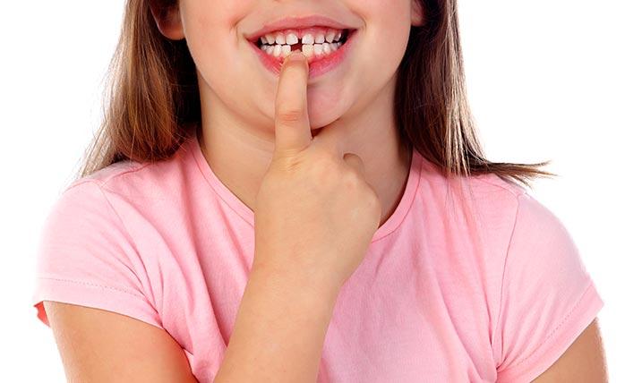 dentista bambini reggiolo