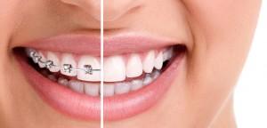 Ortognatodonzia o Ortodonzia